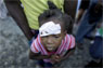 Ariana Cubillos / AP An injured girl waits for medical attention in front of a damaged hospital in Carrefour, in the outskirts of Port-au-Prince. Children are especially vulnerable to secondary health problems including dehydration and infection in the aftermath of the devastating earthquake.